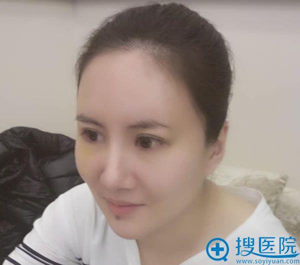 找北京东方和谐王自谦做脂肪填充5天后
