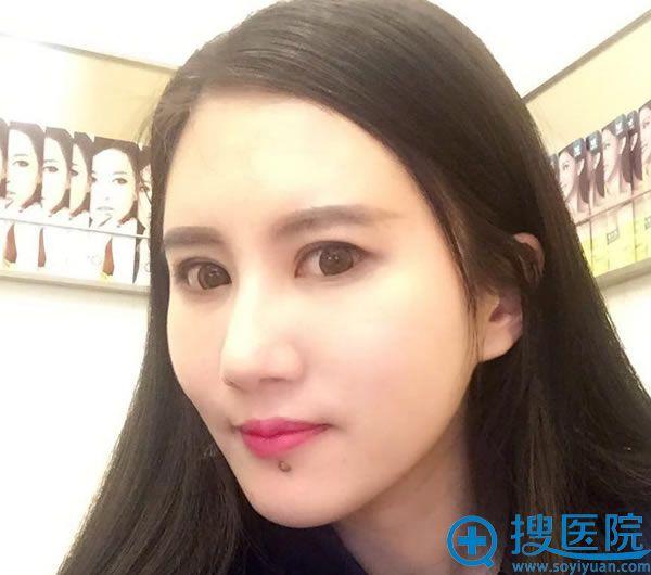 北京东方和谐整形王自谦脂肪填充案例