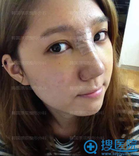 做完假体隆鼻手术7天后