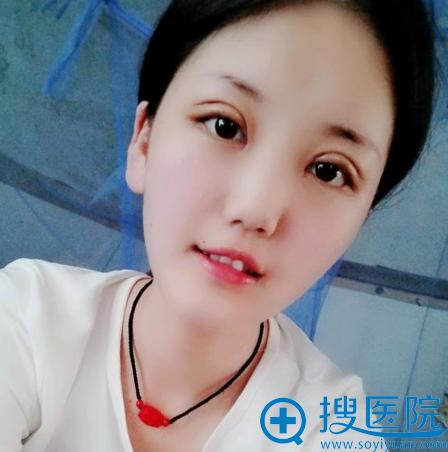 上海华美佀同帅做的全切双眼皮7天拆线
