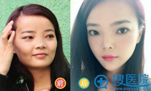 北京玉之光朱金成脂肪填充案例