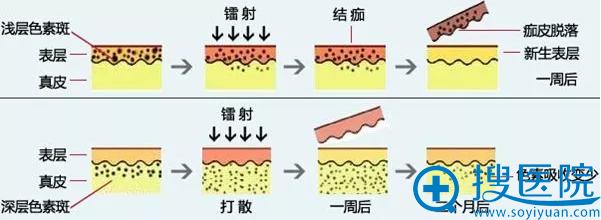 激光祛斑术后皮肤恢复示意图