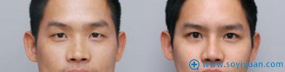 男性做隆鼻手术案例