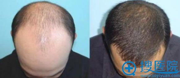 男士热门项目植发手术案例效果