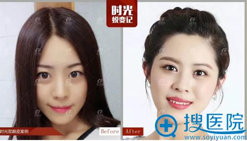 上海时光整形医院郑志玉做的双眼皮案例