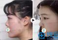 听别人说肋软骨隆鼻效果好,做个自体软骨隆鼻手术需要多少钱