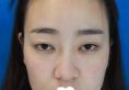 我在重庆华美李富强院长处做双眼皮失败修复看到价格13800元起