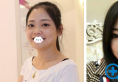 术后2年分享我在长沙美莱找邹俊峰做的自体耳软骨硅胶隆鼻效果