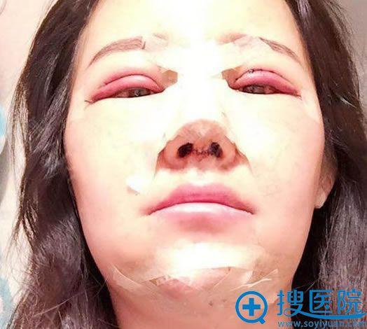 北京丽星魏志香双眼皮隆鼻下巴案例