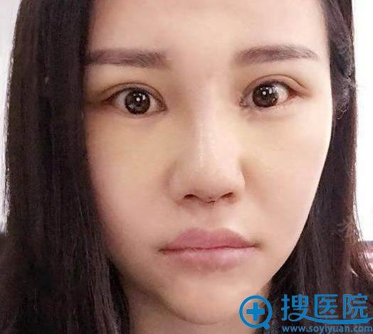 北京丽星魏志香双眼皮案例8天效果