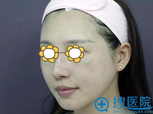 激光祛斑前脸上的痘坑及褐青色痣