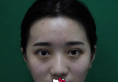 刚在南宁韩成整形医院做了双眼皮又找刘泳铖做了鼻综合手术