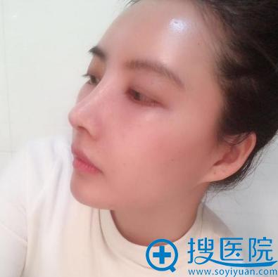 上海华美李健做的进口膨体加肋软骨隆鼻案例