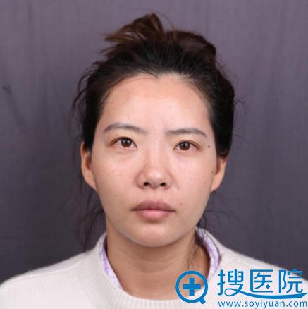 在上海华美整形医院做隆鼻手术前
