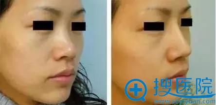 福州美莱华美玻尿酸隆鼻术后对比照