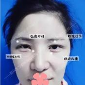 我遭遇全切双眼皮失败后,让郑州东方朴大焕做了双眼皮二次修复
