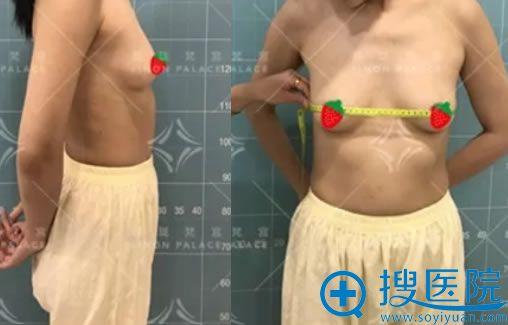 做自体脂肪隆胸失败修复手术前