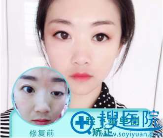 上海美莱杜园园做的双眼皮失败修复案例