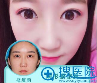 上海美莱杜园园做的双眼皮修复案例