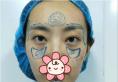 郑州元素美学整形鲁亚东做全脸脂肪填充怎么样?分享下我的经验