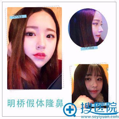 上海明桥整形医院孙超做的隆鼻案例
