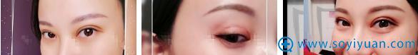 陈一言双眼皮术后素颜化妆效果对比