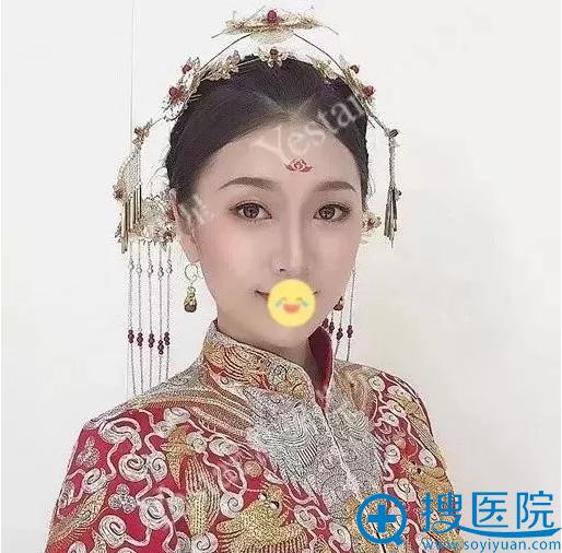 济南艺星杨季涛双眼皮效果展示