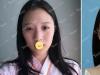 """济南艺星杨季涛给单眼皮妹子做的双眼皮竟然有""""换头""""般的效果"""