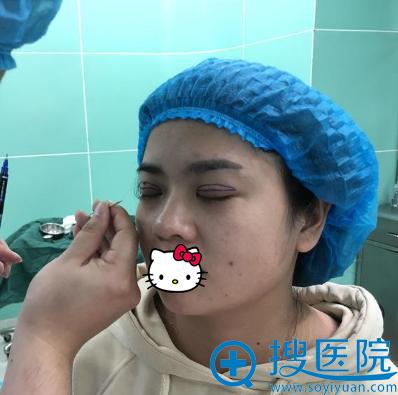 长沙希美蒋松林设计手术方案