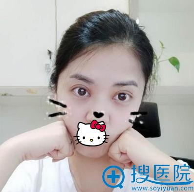 蒋松林双眼皮+开眼角拆线后照片