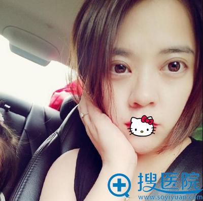 长沙希美蒋松林双眼皮术后恢复效果