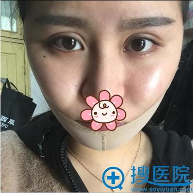 面部抽脂术后4天恢复情况