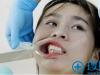 分享我找杭州连天美王婵做牙齿矫正的亲身经历和收费价格表