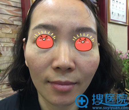 在北京京韩做自体脂肪填充前