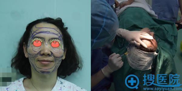 北京京韩自体脂肪填充手术过程