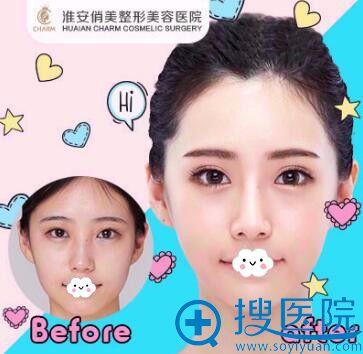 淮安俏美(原上海第九人民医院整形外科朱晓云)双眼皮案例