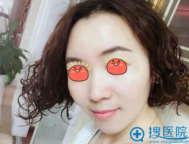 北京京韩张振脂肪填充案例30天效果