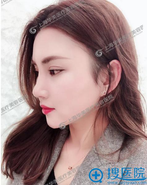 上海华美李健自拍的隆鼻案例