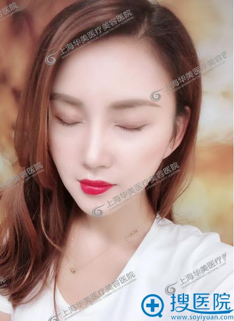 上海华美杨亚益做的双眼皮修复案例闭眼效果图