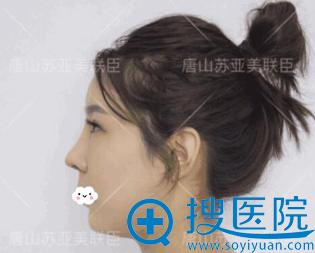 唐山苏亚美联臣自体耳软骨隆鼻术后7天效果