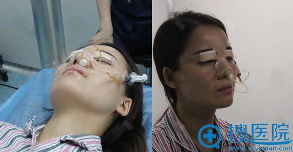 刚做完双眼皮和隆鼻手术照片