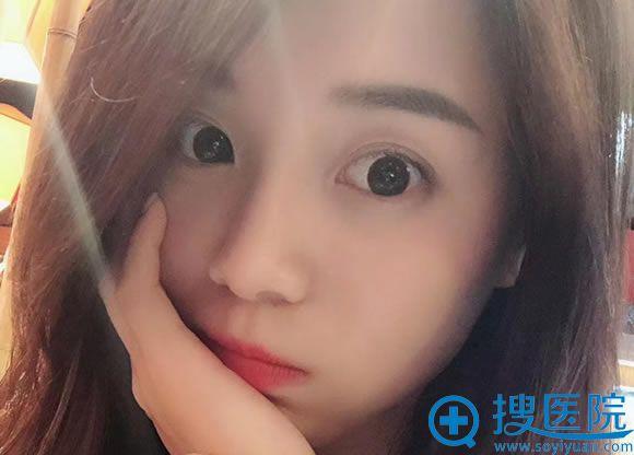 长沙亚太肖雪春割双眼皮和隆鼻案例