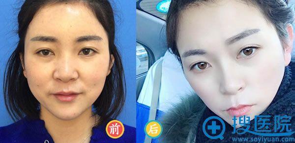 北京蜜邦医美马克伟脂肪填充案例