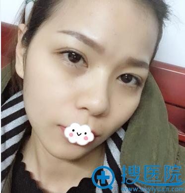 长沙雅美自体脂肪丰面效果怎么样?刘志刚真人案例