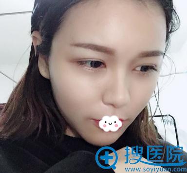 长沙雅美刘志刚自体脂肪丰面案例图