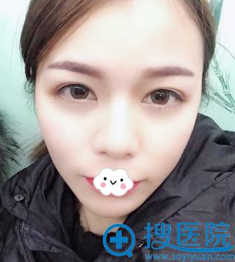长沙雅美刘志刚自体脂肪填充全脸术后2个月恢复图