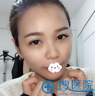 长沙雅美刘志刚自体脂肪填充全脸术后效果