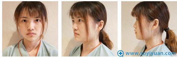 在上海薇琳医美做隆鼻手术前