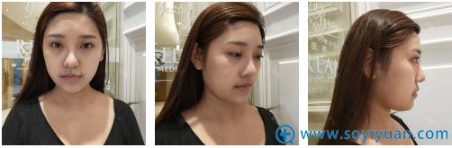在上海薇琳医美做双眼皮手术前