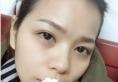 老公说我在长沙雅美刘志刚处做的自体脂肪填充全脸效果很好!